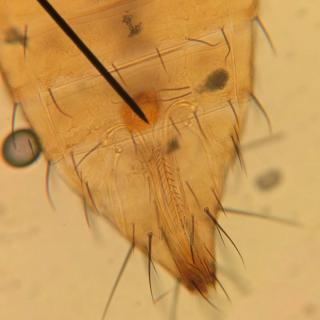 Microscope view of the abdomen of a Terebrantia thrips showing an ovipositor.